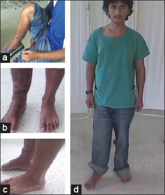 Figure 5(a-d): A good clinical appearance and functional outcome of the patient after 20 months of treatment