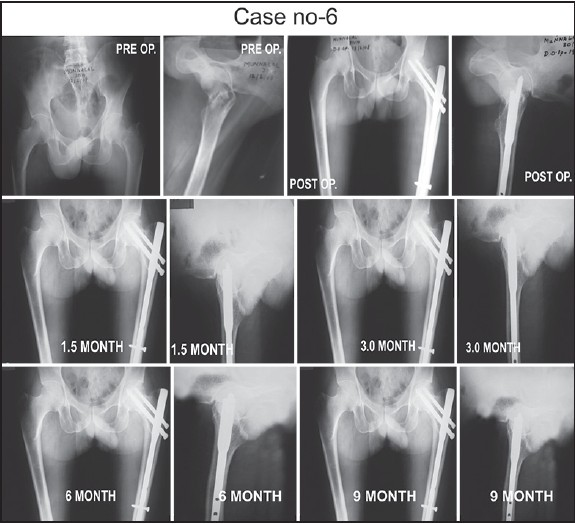 Figure 3: Preoperative, postoperative and follow-up radiographs of another case showing fracture neck of femur treated by proximal femoral nail