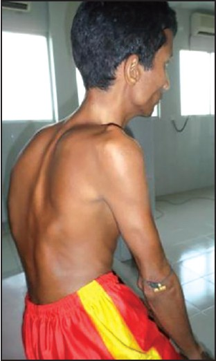 Figure 1: Bony deformity of patient