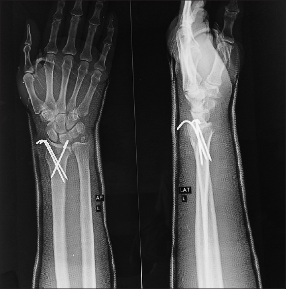 Figure 5: X ray after 5 weeks