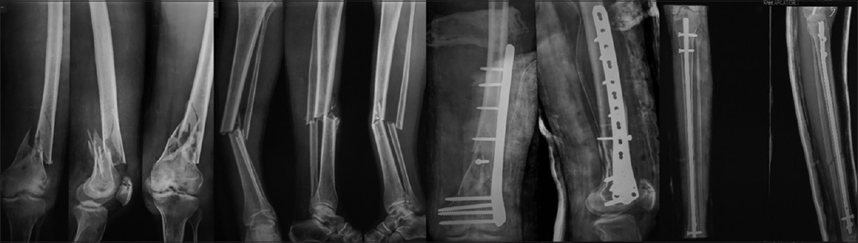 Figure 4:Radiograph showing Fraser type 2B